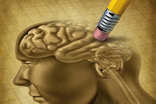 Zeichnung von Gehirn mit Demenz