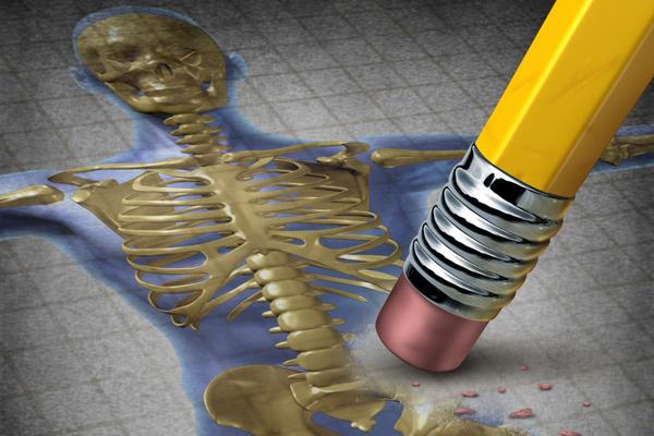 Zeichnung Körper mit Osteoporose