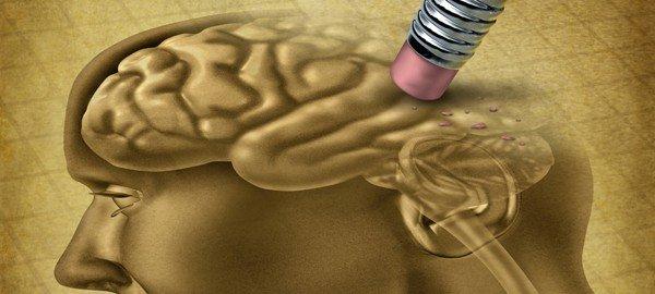 Test für Alzheimer und Demez - Homocystein Netzwerk