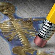 Zeichnung Körper mit Osteoporose - Homocystein Netzwerk