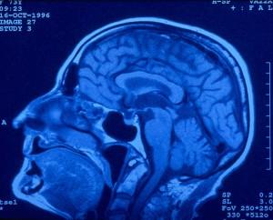 Ursachen eines Schlaganfalls - Homocystein